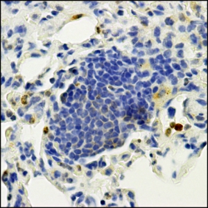Cancer Metastasis in Lung