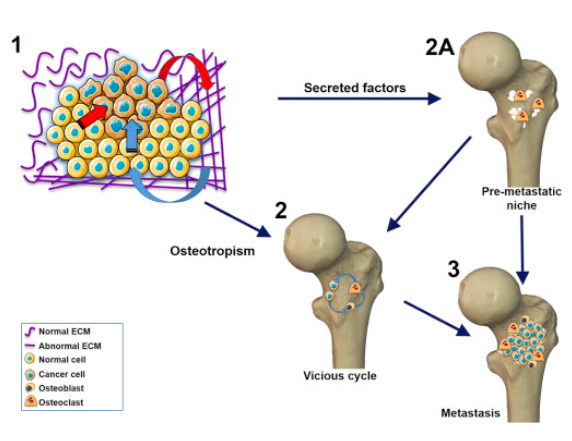 Lysyl oxidase in bone metastasis