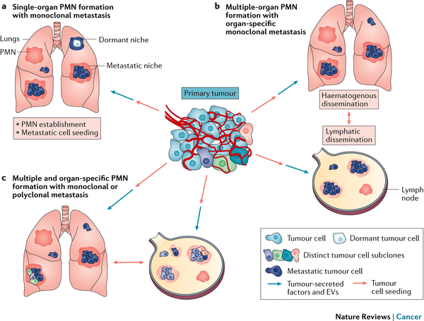 Premetastatic niches (Nature Reviews Cancer)