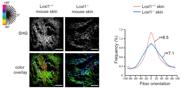 LOXL1 mediates collagen I organisation in the skin
