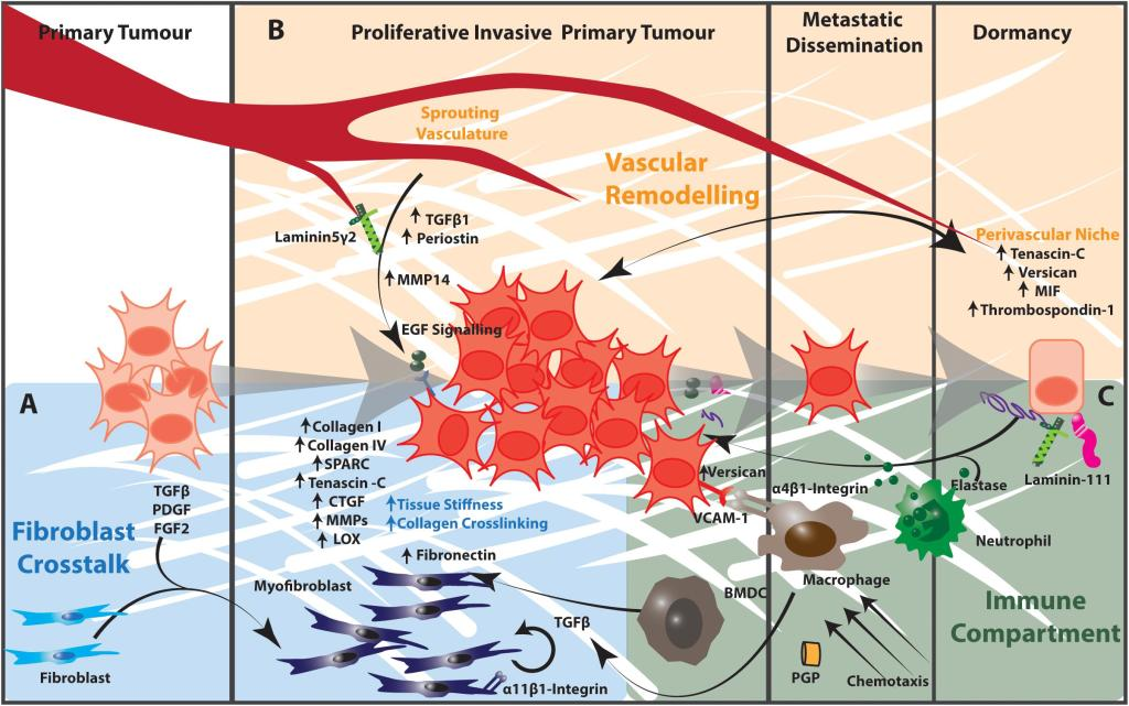 Extracellular Matrix in Lung Cancer